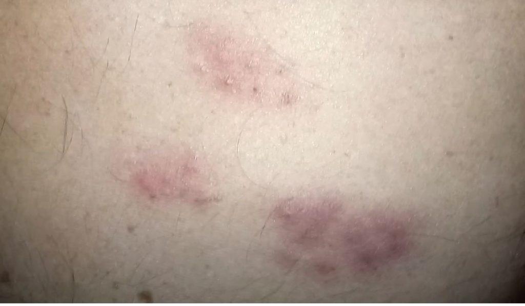 Фото: укусы клопов на спине