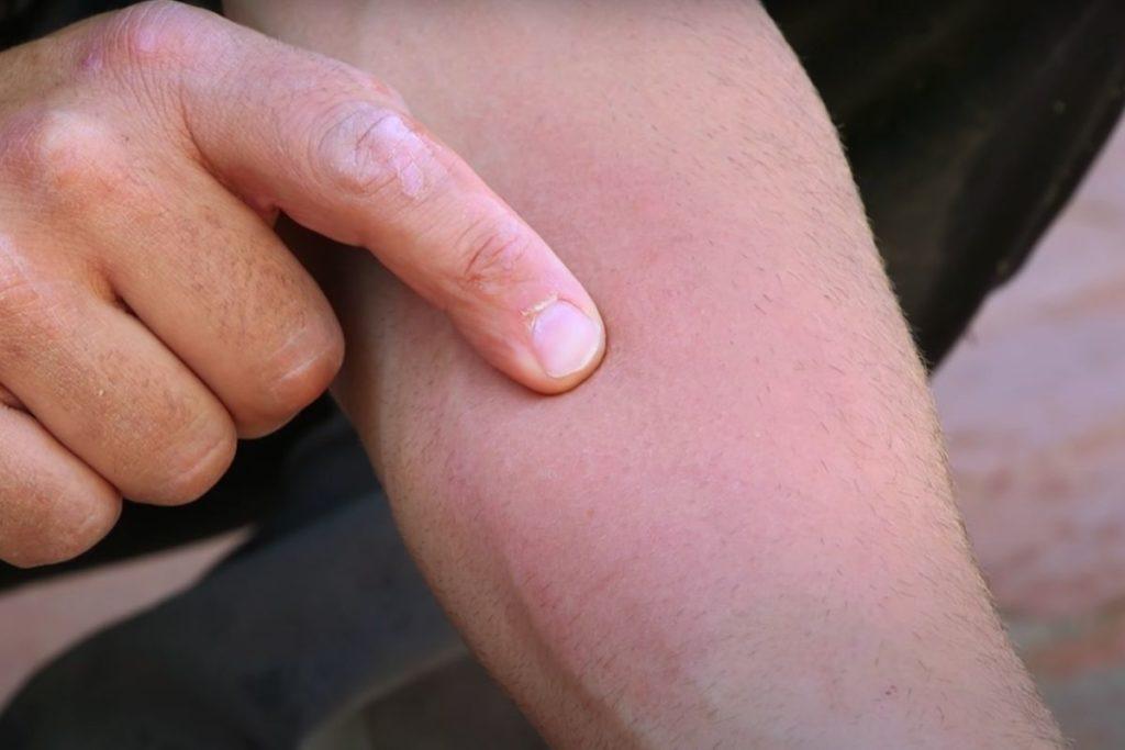 Фото: Аллергическая реакция на укус шершня