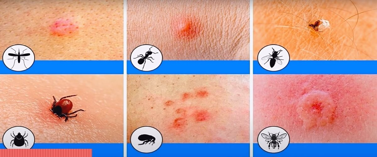 Фото: Кто меня укусил - отличие укусов насекомых